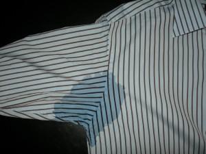 Ausgedehnte Schweißflecken bei einem Patienten mit starker axillärer Hyperhidrose