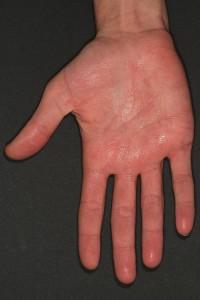 Feuchte Handflächen bei palmarer Hyperhidrose